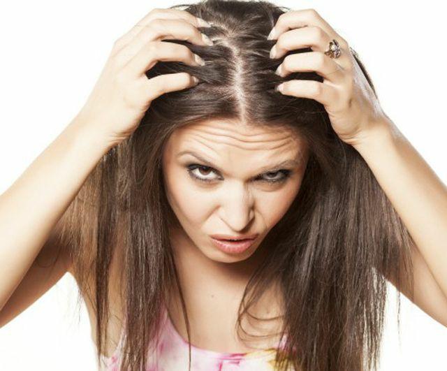 RC_picor cuero cabelludo